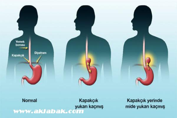 mide yanmasını geçirme, mide yanmasına çözüm, mide yanması nasıl geçer
