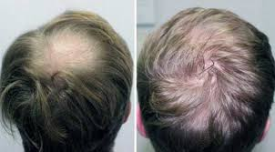 saç ektirme istanbul, saç ekimi çalışanları, saç ekimi çalışanları kimler