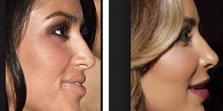 burun estetiği sonrası, estetik ameliyat sonrası bakım, burun estetiği sonrasında bakım yapma