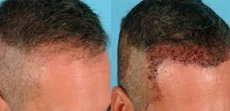 saç ekimi merkezleri, saç ektirme merkezi, istanbul saç ekimi