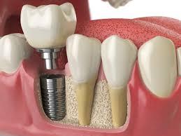 implant tedavisi, implant diş yapımı, implant garantisi