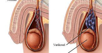 varikosel belirtileri, cinsel bölge hastalıkları, varikosel tedavisi