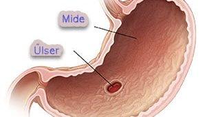 mide ülseri, ülser sebepleri, ülser kimlerde görülür