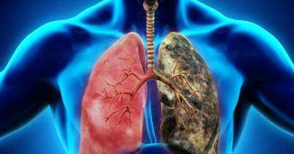 akciğer kanseri, akciğer kanseri teşhisi, akciğer kanseri tedavisi